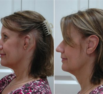 Ear-Prosthesis-Before-and-After-1