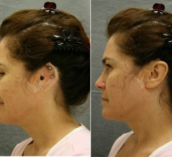 Ear-Prosthesis-Before-and-After-2