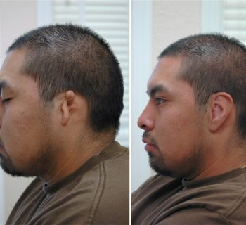 Ear-Prosthesis-Before-and-After-3