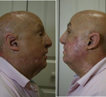 Ear-Prosthesis-Before-and-After-4