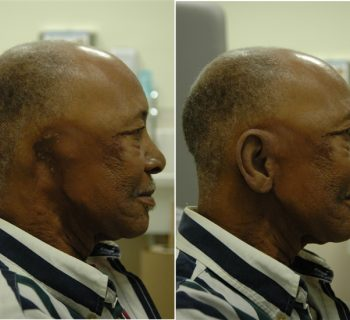 Ear-Prosthesis-Before-and-After-5