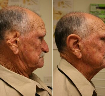 Ear-Prosthesis-Before-and-After-6