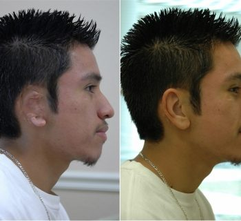 Ear-Prosthesis-Before-and-After-7