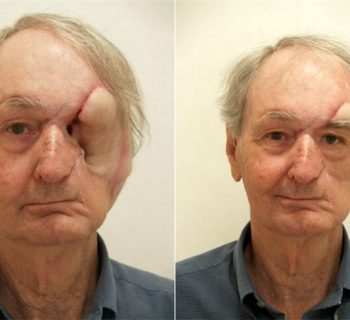Orbital-Prosthesis-Before-and-After-1