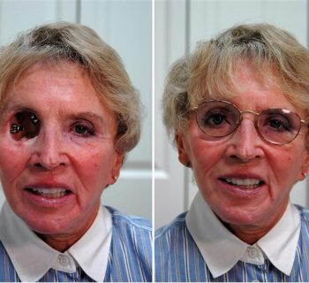 Orbital-Prosthesis-Before-and-After-3