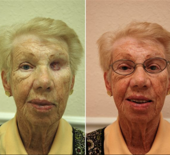 Orbital-Prosthesis-Before-and-After-6