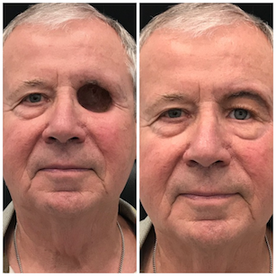 Orbital-Prosthesis-Before-and-After-7