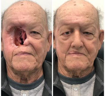 Orbital-Prosthesis-Before-and-After-9